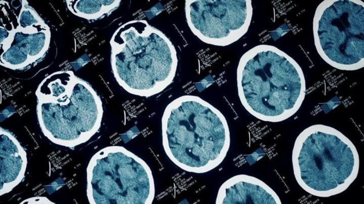 Prison et violence : comment les lésions cérébrales peuvent conduire au crime