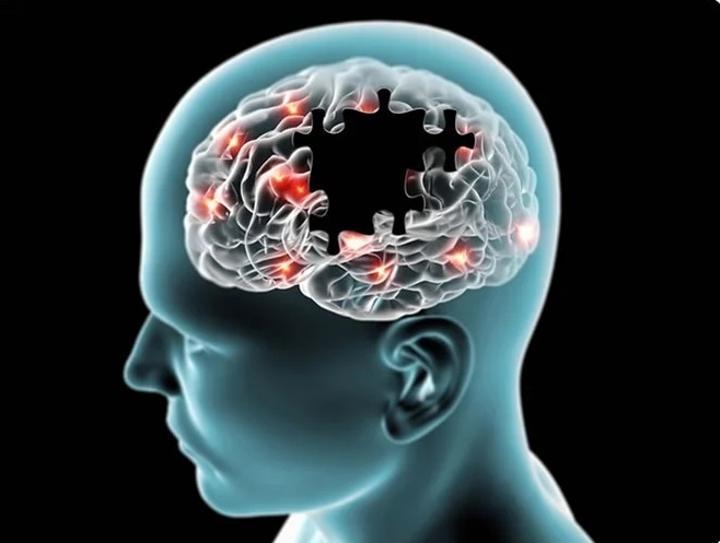 Maladie d'Alzheimer : son origine enfin découverte ?