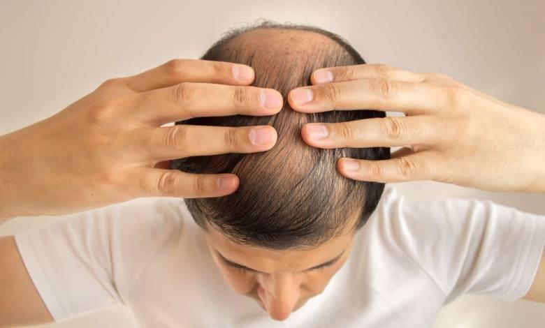 Thaïlande : des scientifiques affirment avoir découvert un remède pour lutter contre la perte des cheveux !