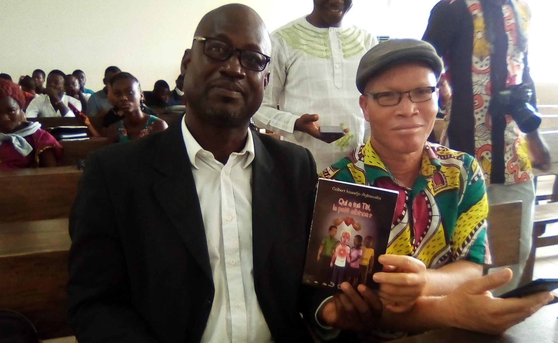 Colbert Kouadjo: «il faut arrêter les crimes rituels contre les albinos africains»