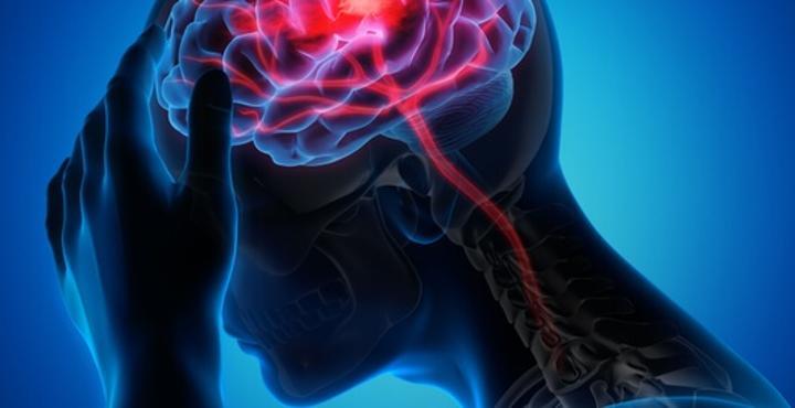 سبع علامات للجلطة الدماغية الصامتة