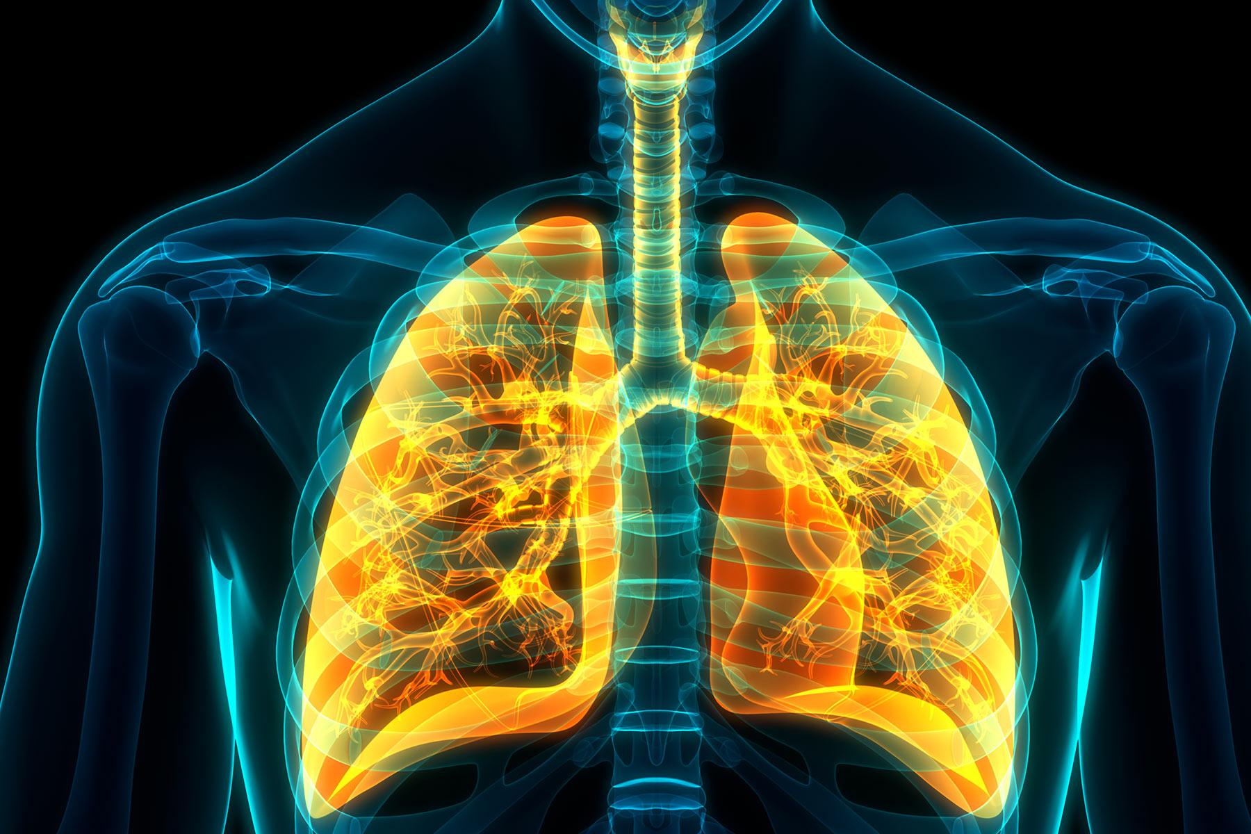 دراسة حديثة ترصد ضررا في الرئة يطول أمده بعد الإصابة بفيروس كورونا