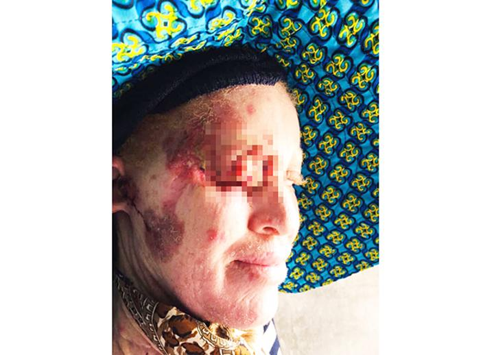 Woman suffers 'untreatable' tumours - The Namibian