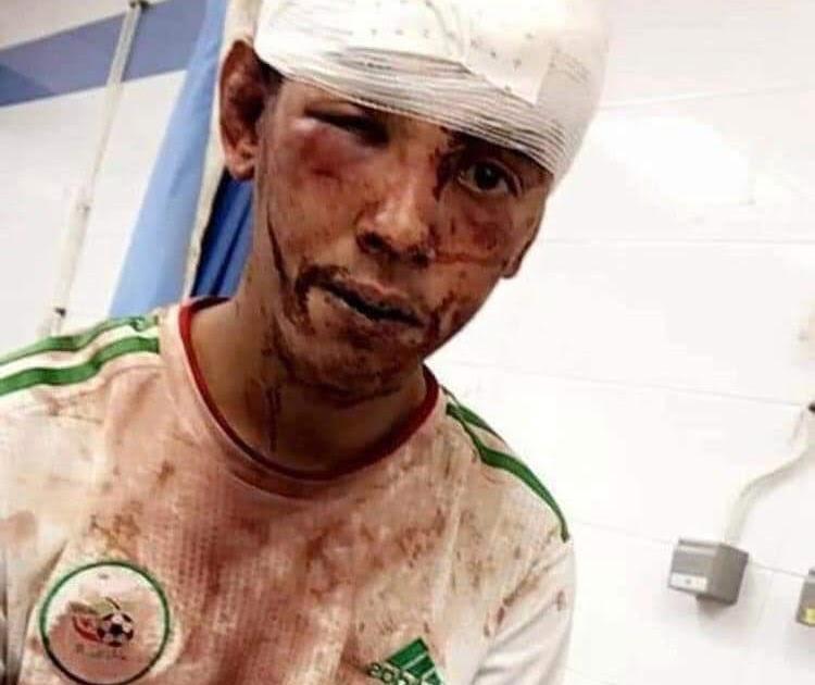 بسبب ارتدائه قميص منتخب الجزائر ، تعرض الشاب الصحراوي بشار كدان لاعتداء وحشي من طرف الاحتلال بمدينة العيون المحتلة.