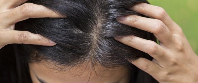 5 حقائق عن الشيب عند المرأة وعوامل الشيب المبكّر