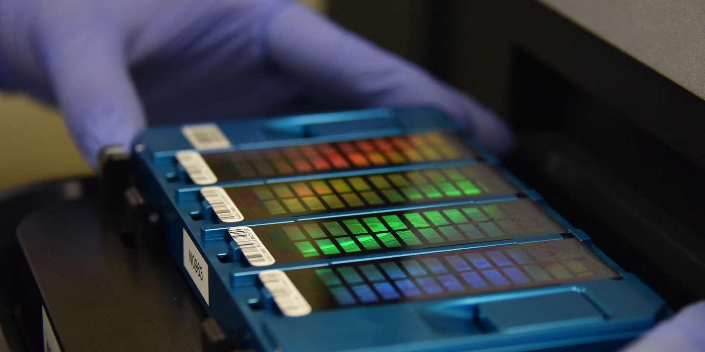 Un chercheur veut séquencer l'ADN de 3millions d'Africains, grands oubliés de la génétique