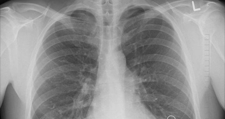 Identification de trois sous-types de cancer du poumon pouvant toucher les non-fumeurs